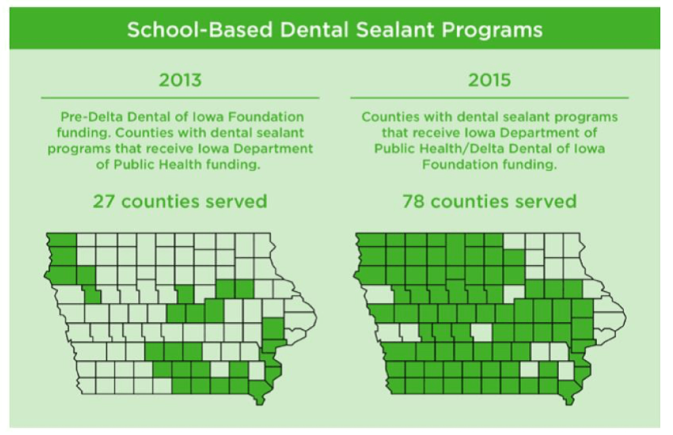 Protect Your Child's Teeth with Dental Sealants