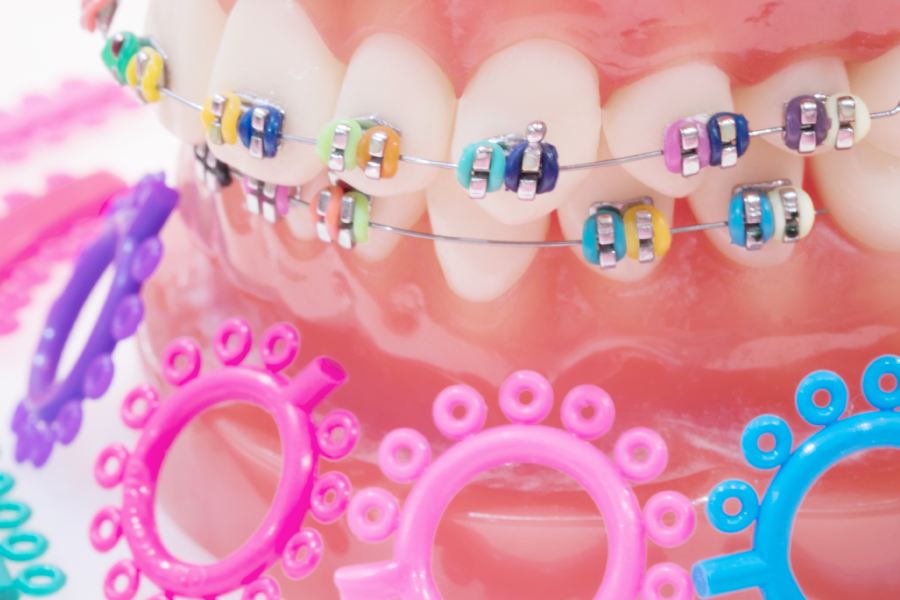 The Ultimate Braces Style Guide [INFOGRAPHIC]