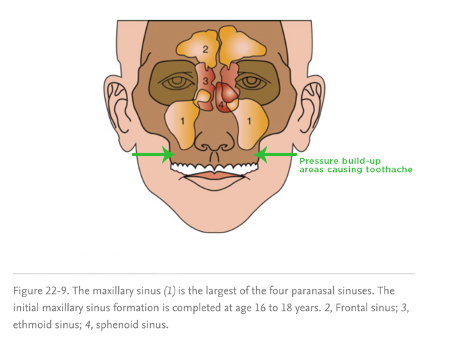 The maxillary sinus is made up of a right sinus and a left sinus.