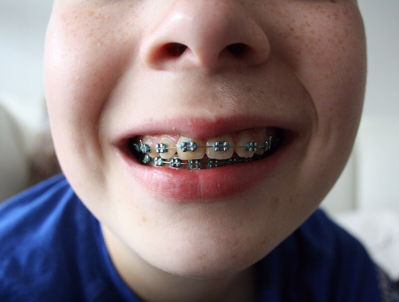 "How to Financially ""Brace"" for Orthodontia"